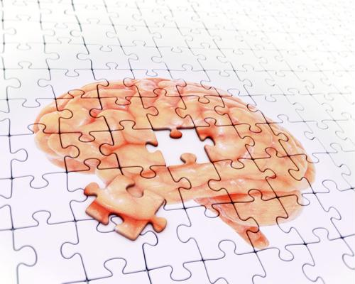 A new study has found a link between concussions and Alzheimer's disease.