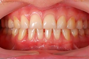 Different remedies can be applied to receding gums