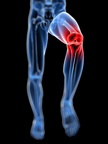 High-impact training may help osteoarthritis patients