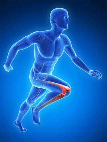If people have chronic knee pain, it can lower their quality of life and keep them from doing the activities they love.