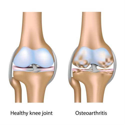 Losing weight may help osteoarthritis patients