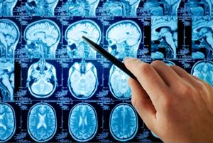 New imaging technology may help doctors better predict the progression of certain types of dementia.