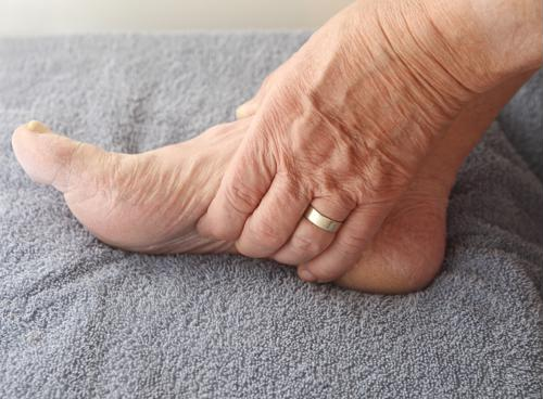 UK study highlights evidence that links gout to family genetics