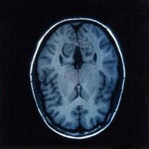 Brain imaging may be able to predict cognitive decline.
