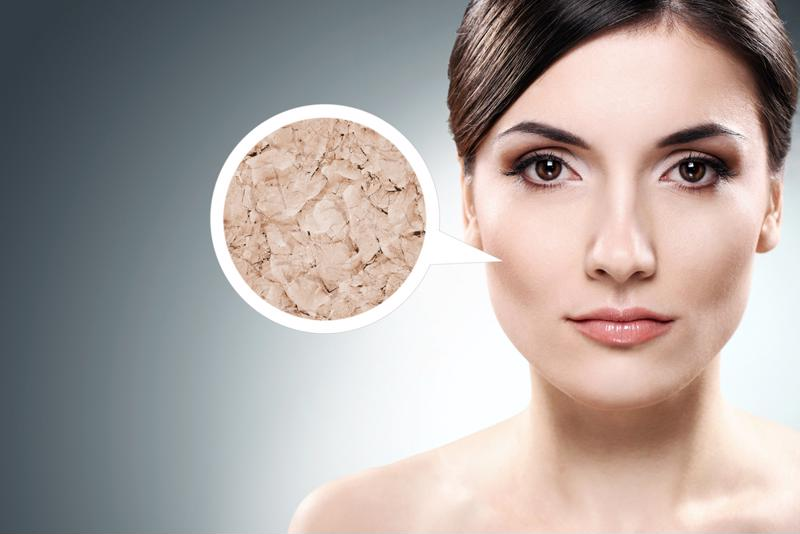 Low humidity levels may be causing dry skin.