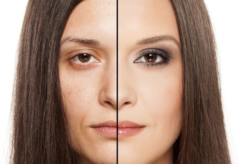 Is your skin sun damaged?