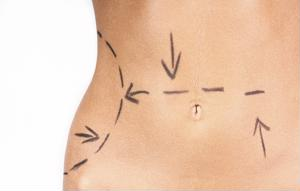 Reflections for laser liposuction.