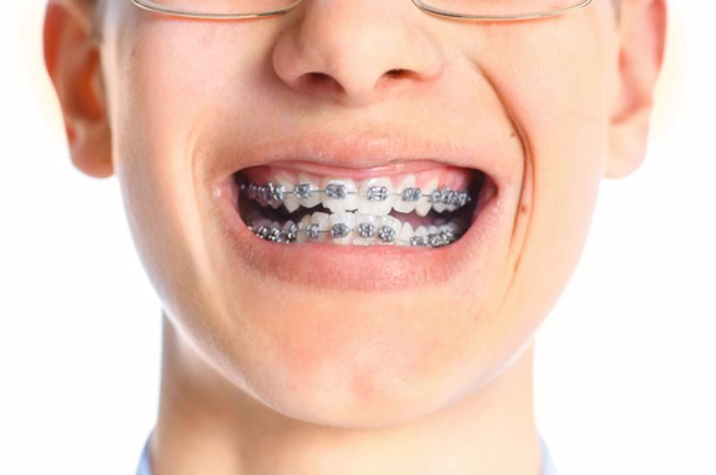 Smiling child with braces