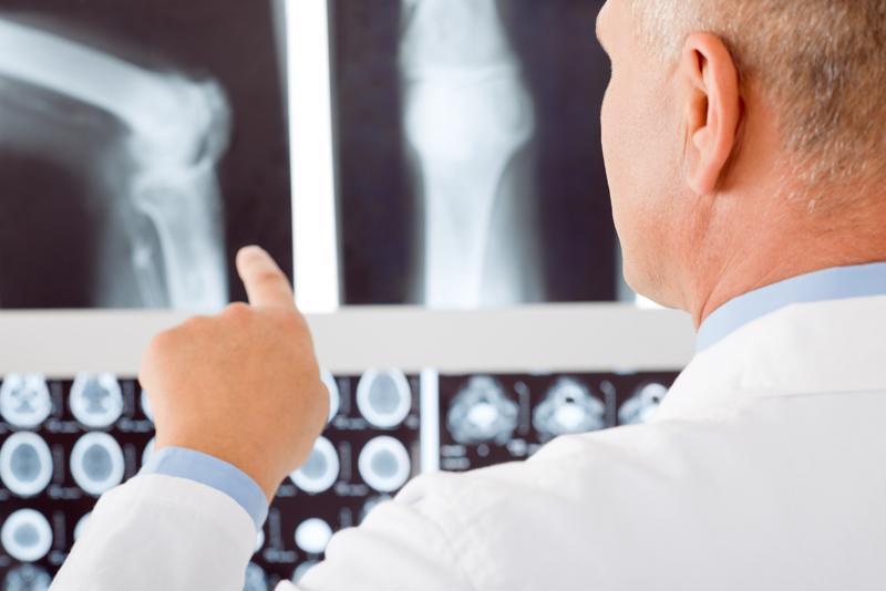 doctor looking at broken bone xray