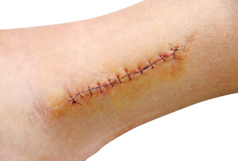 skin avulsion with stitches