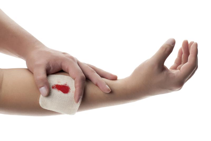 treating a wound