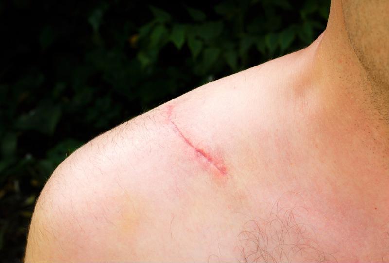 Scar on shoulder