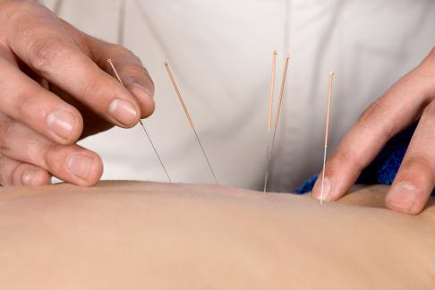 Acupuncture can be an effective way to manage arthritis pain.