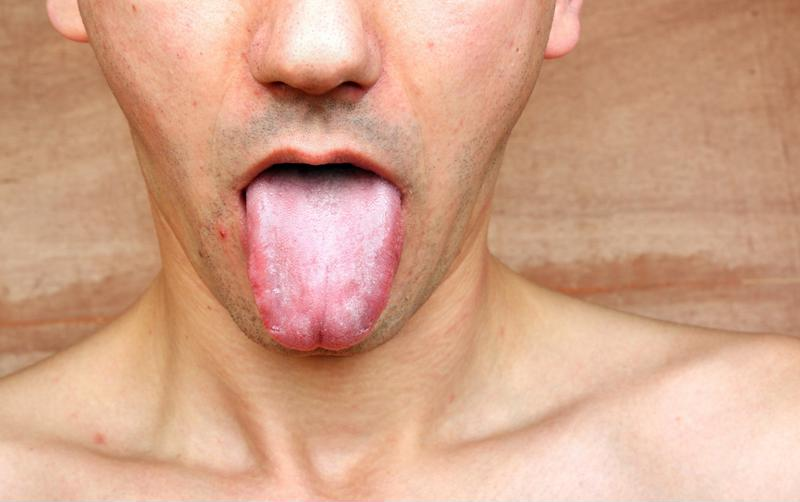Dry mouth can lead to tongue swelling.