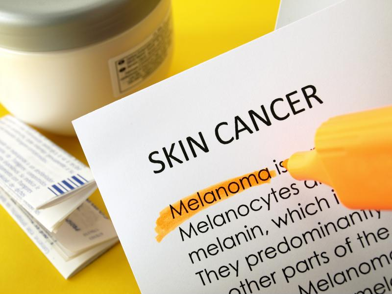 Regular skin checks can help seniors avoid skin cancer.