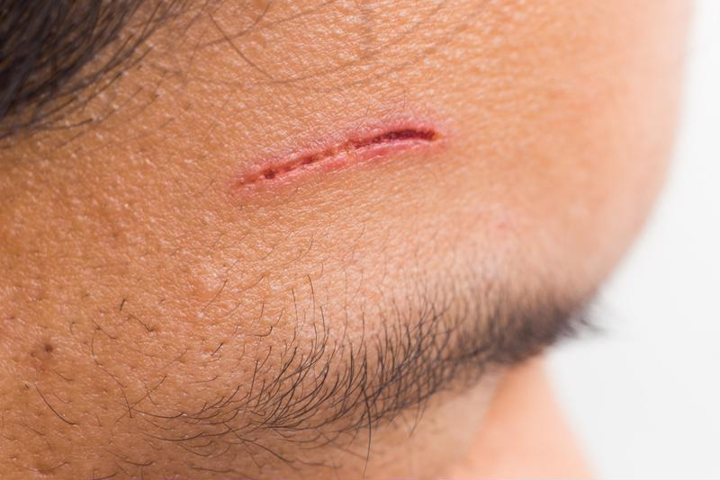 laceration on forehead