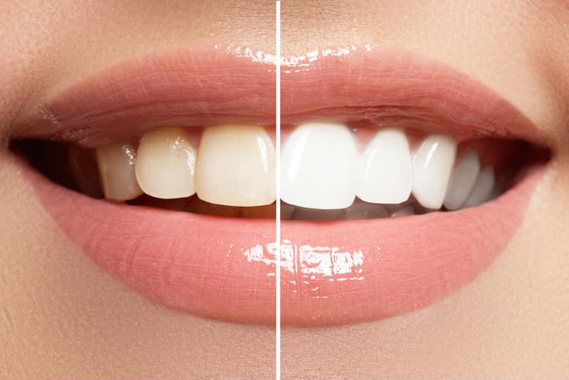 Before and after teeth whitening photos.