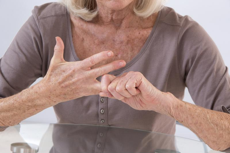 Woman with arthritis in hands stretching fingers