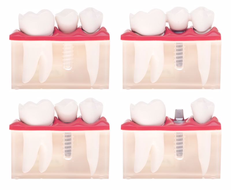 An implant may make the most sense for replacing teeth or filling a gap.